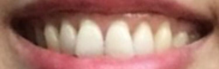 歯肉整形後の写真