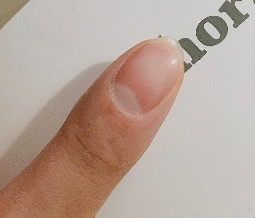 甘皮処理前の爪
